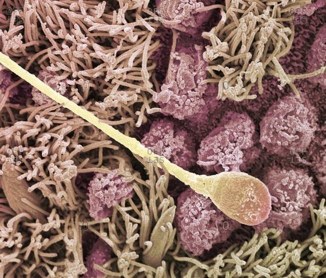 Magnification view of a Sperm cell under a Color scanning electron micrograph