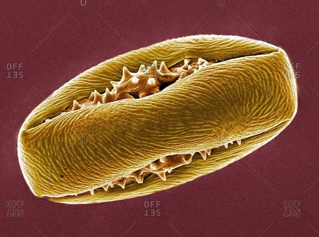 Magnification view of Horse chestnut pollen grain under a Color scanning electron micrograph