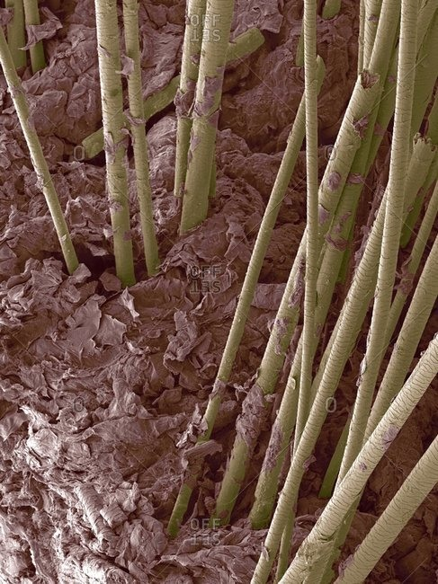 Color scanning electron micrograph of hair shafts growing from the surface of human skin.