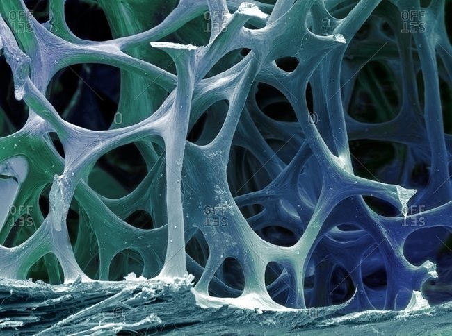 Color scanning electron micrograph of cancellous (spongy) bone from a robin.