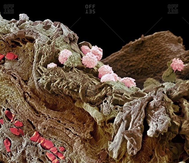 Pyoderma skin disease under Color scanning electron micrograph.