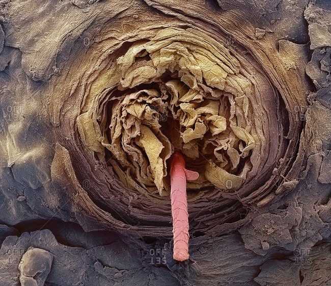 Eyelash follicle, Color scanning electron micrograph. Magnification: x400 when printed at 10 centimeters wide.