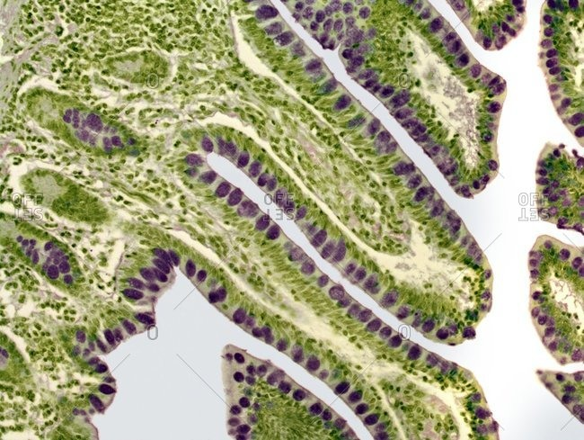 Light micrograph of a section the lining of the colon, highlighting the mucous producing goblet cells (purple).