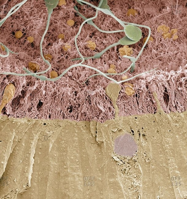 Color scanning electron micrograph of a freeze fracture through the epididymis.