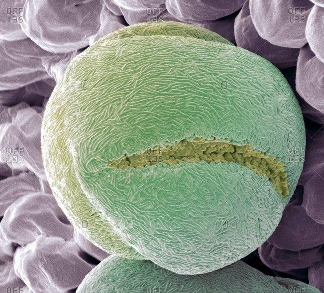 Strawberry (Fragaria vesca) pollen grain under a Color scanning electron micrograph.