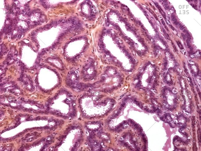 Light micrograph of a section through breast tissue showing mastitis (inflammation) of breast.