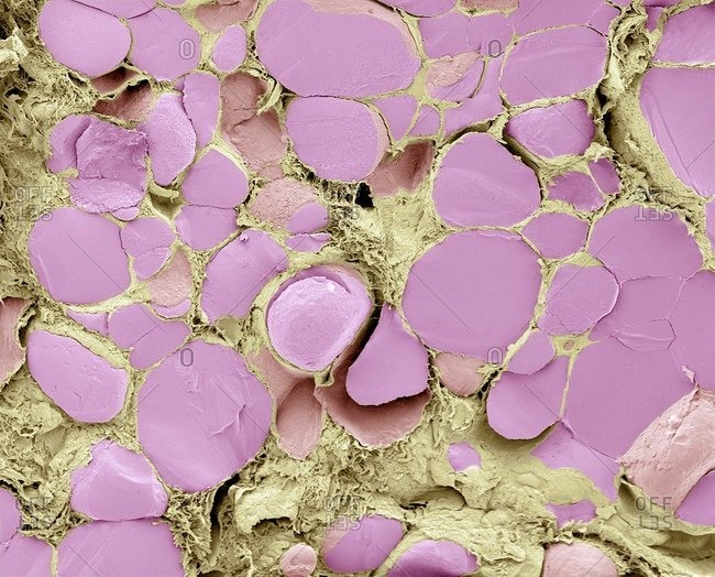 Color scanning electron micrograph of a fracture through the thyroid gland revealing several follicles (pink).