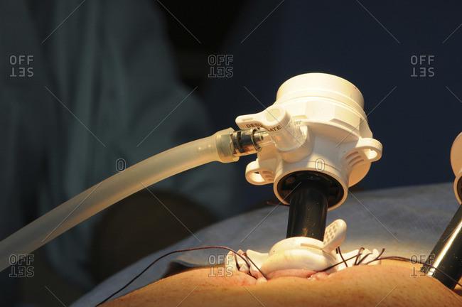 Laparoscopic prostatectomy  surgery