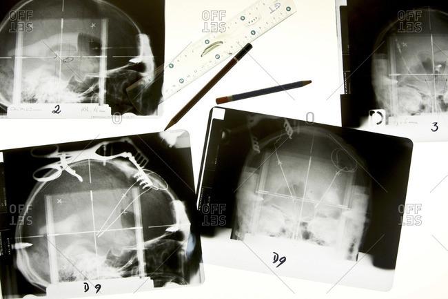X-rays depicting Parkinson's disease treatment