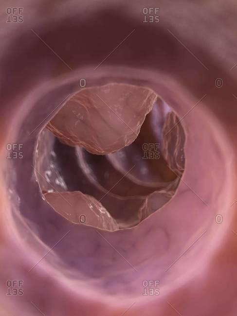 Colon tumor, computer artwork - Offset