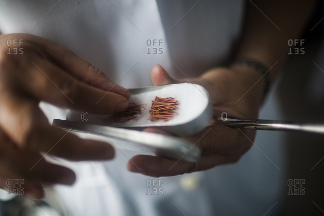 Doctor holding small acupuncture needles, Hanoi, Vietnam.