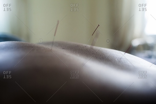 Close up of traditional acupuncture on a patient, Hanoi, Vietnam.