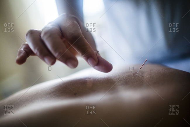 Doctor performs traditional acupuncture on a patient, Hanoi, Vietnam.