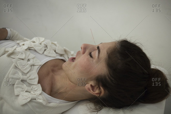 Woman having an acupuncture treatment