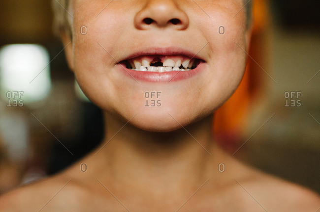 Happy boy showing off missing tooth