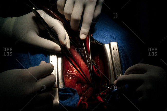Heart surgery in operation