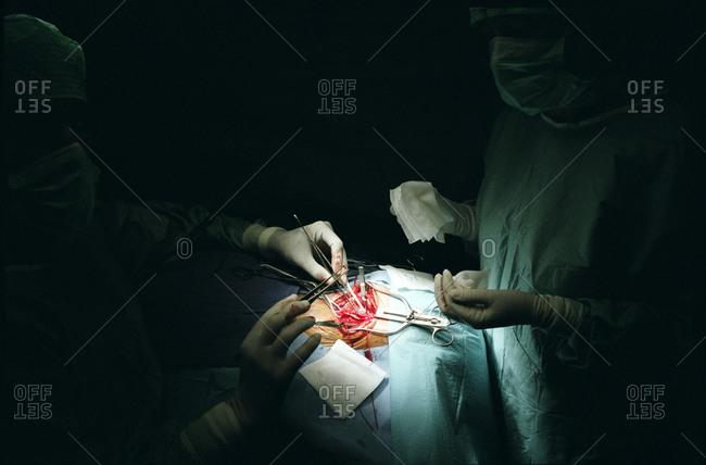 Surgeons performing carotid artery surgery.