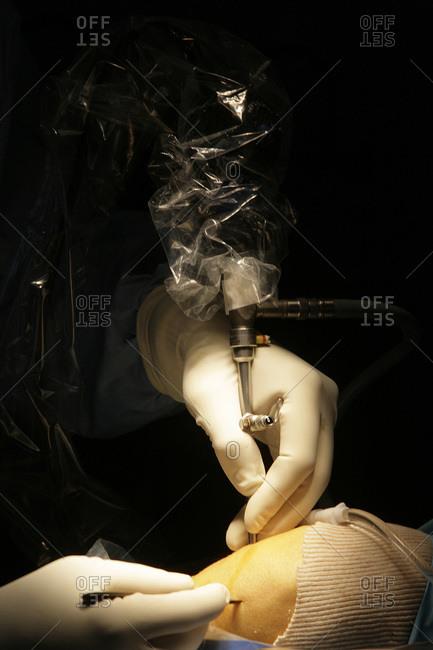 Surgery under endoscopy.
