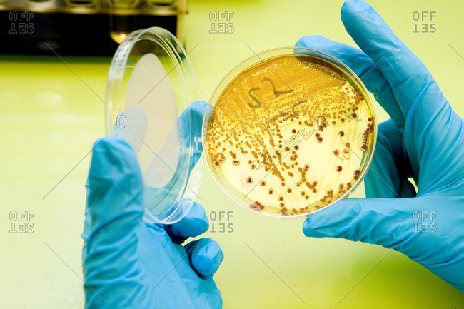 Escherichia coli in the urines, bacteriology