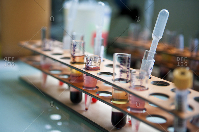 Blood samples in test tubes. Preparation of microplates.
