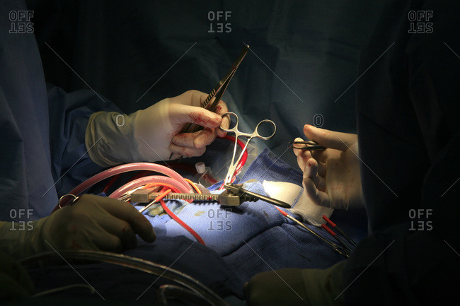 Surgeons performing heart prosthesis surgery.