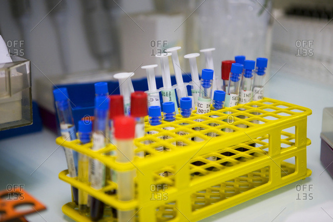 Close up view of test-tubes and syringes in a hospital laboratory.