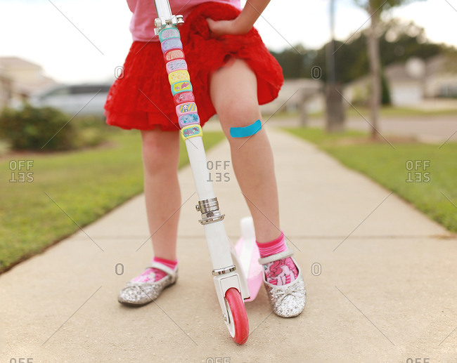 A girl on scooter showing her bandage strip
