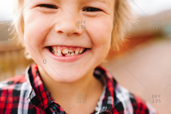 A little boy shows off his lost tooth