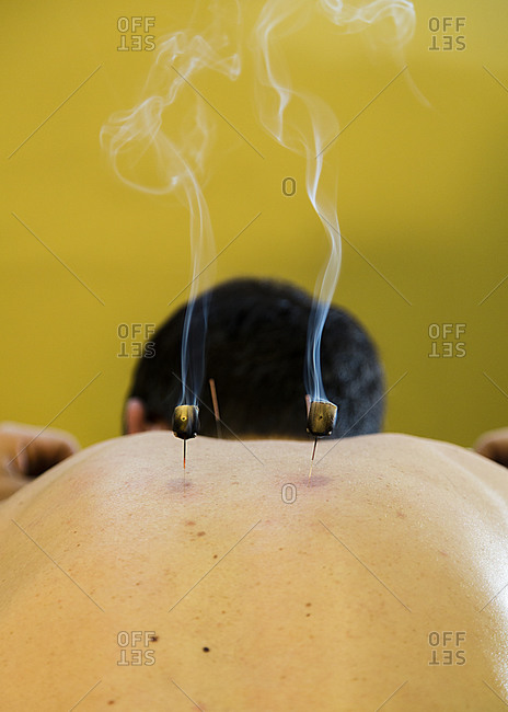 Person receiving an acupuncture treatment