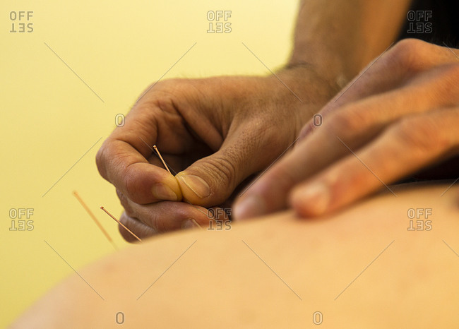Hands placing acupuncture needles