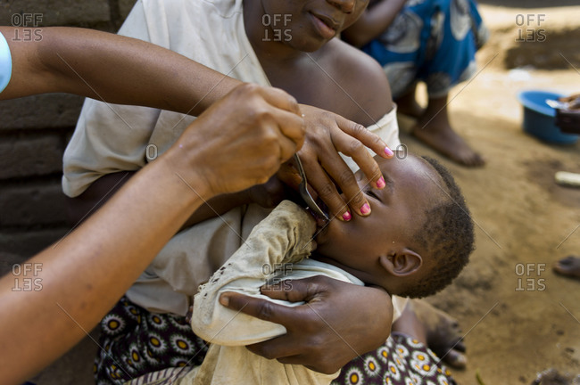 Ndallam Village, Malawi - April 22, 2013: A mother holds her sick child as community health monitor Faines Labana gives baby antibiotics