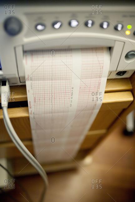 An electronic fetal monitor prints out a graph