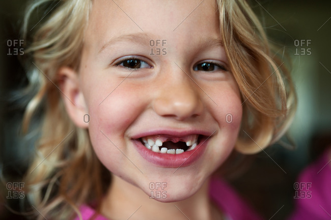 A girl smiles revealing missing front teeth