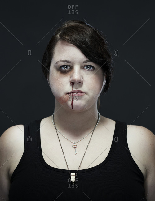 Portrait of a bruised woman
