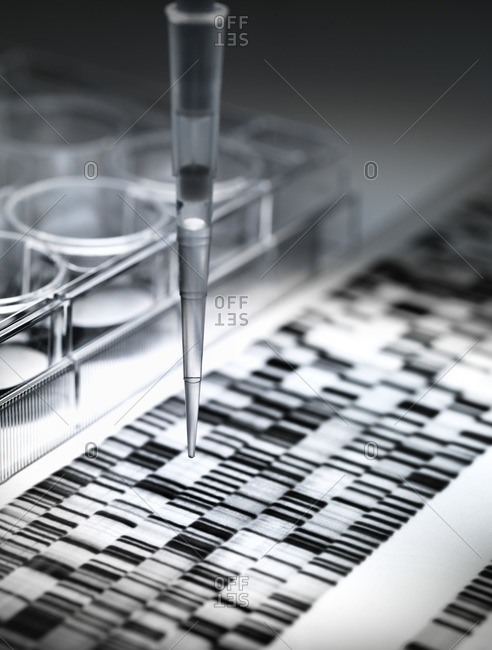 Sample of DNA being pipetted with a DNA gel