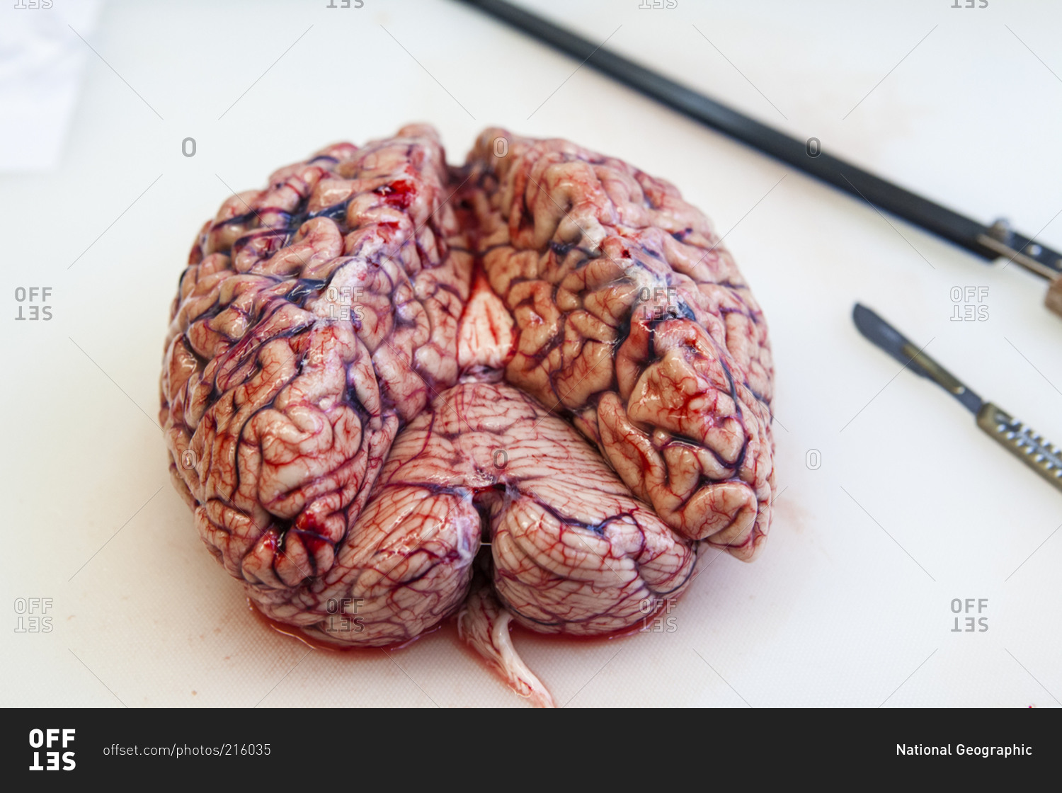 Human brain before an autopsy to determine the cause of death stock ...