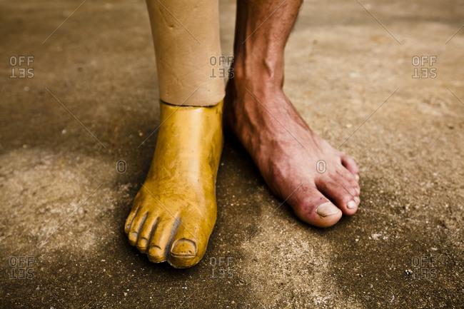 Man's prosthetic leg and foot in Vietnam
