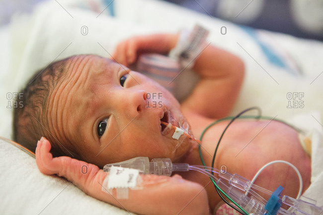 Preterm baby lying in an incubator