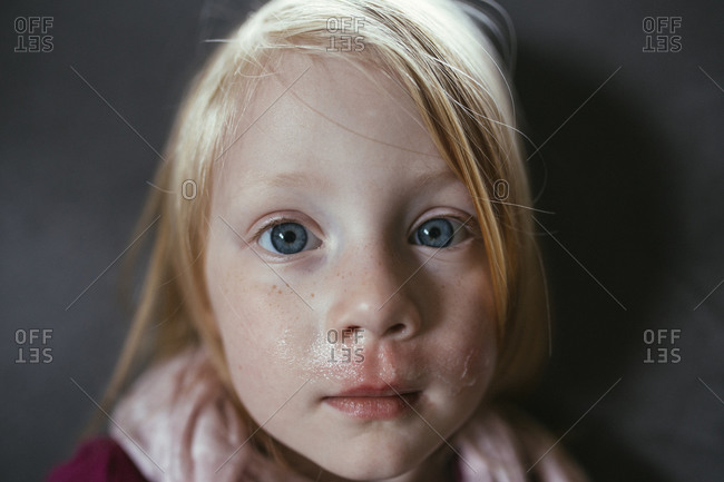 Young girl with a runny nose