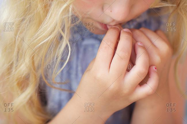 Nervous girl biting her finger nails