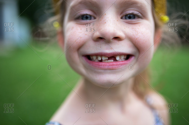 Girl with toothless smile