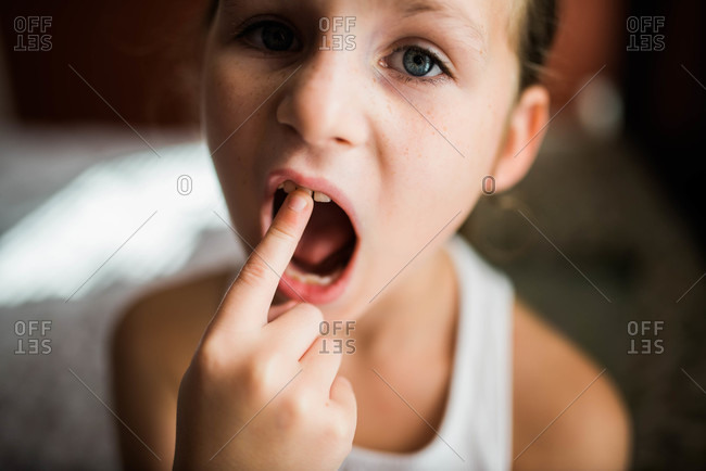 A girl points to her loose tooth