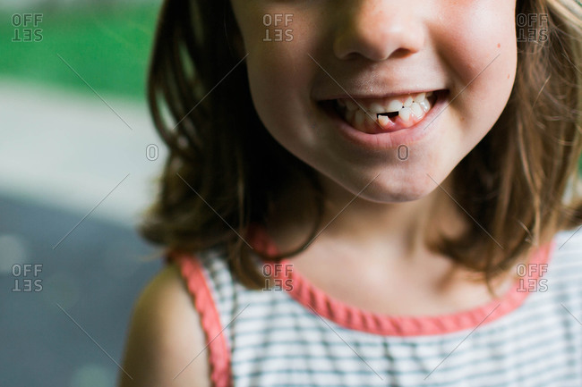 Close-up of a girl with a missing baby tooth
