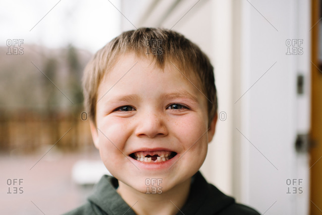 Little boy missing front teeth smiling