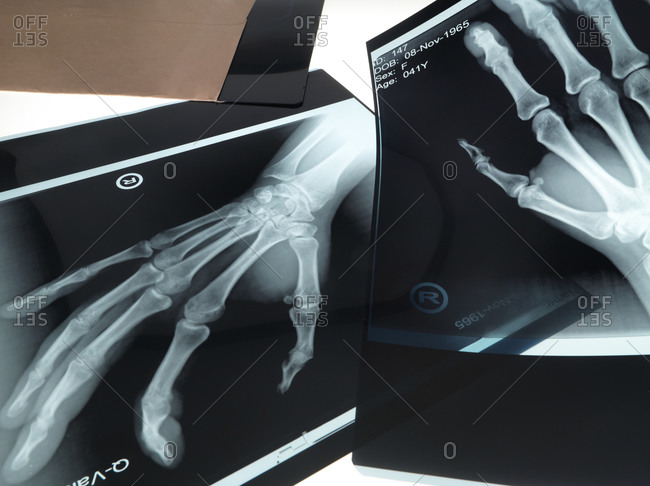 X-rays of hands