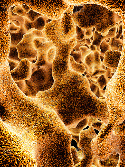 Illustration of the trabeculae in the cancellous (spongy) bone tissue affected by osteoporosis