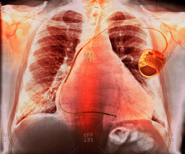 Chest X-ray showing a pacemaker (right) fitted to a male patient with an enlarged heart (cardiomegaly)