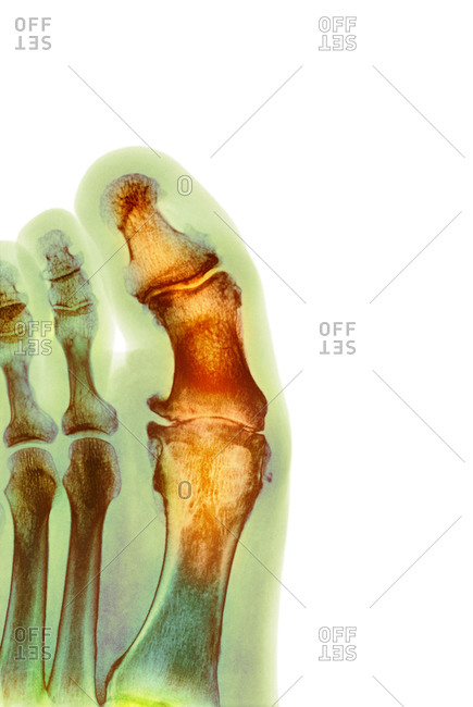 X-ray of a section through the foot of a male patient with a severe degenerative change in the metatarsophalangeal (MTP) joint of the big toe (center)