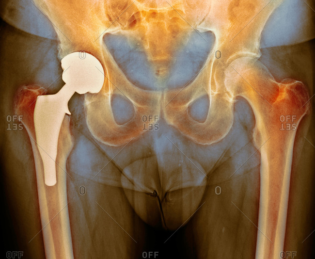 X-ray of a section through the pelvic region of a patient after total hip replacement surgery
