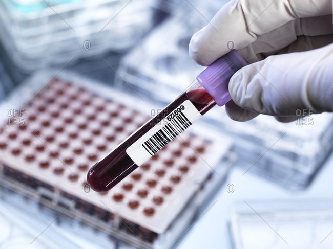 Scientist preparing blood sample for clinical testing in a laboratory